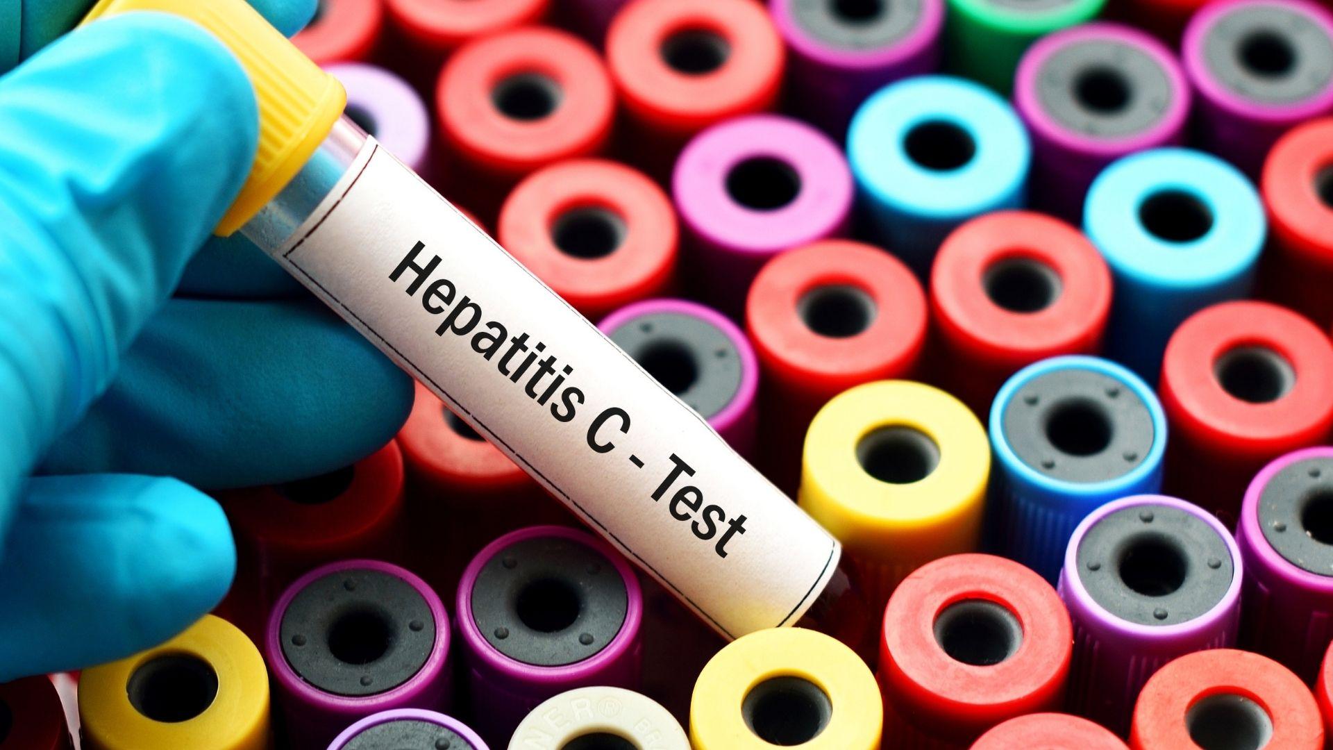 Hepatitis C kann zu gefährlichen Spätfolgen wie Leberkrebs